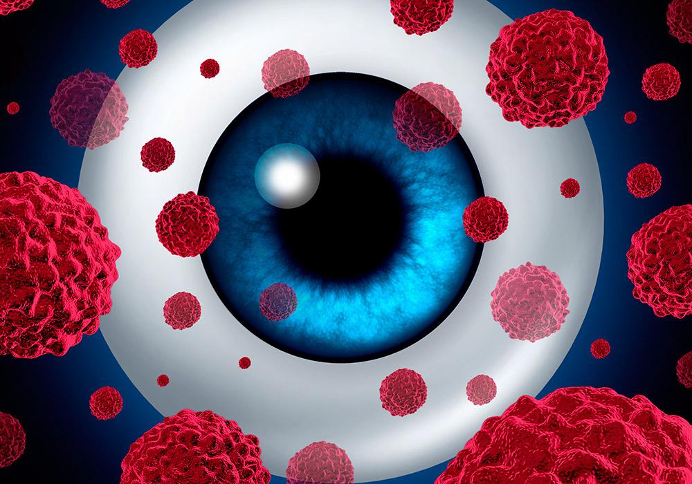 Oncología Ocular - Cáncer Ocular
